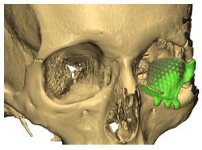 prothèse 3D en titane pour la chirurgie maxillo-faciale