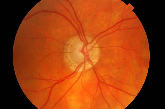 Nerf optique glaucomateux