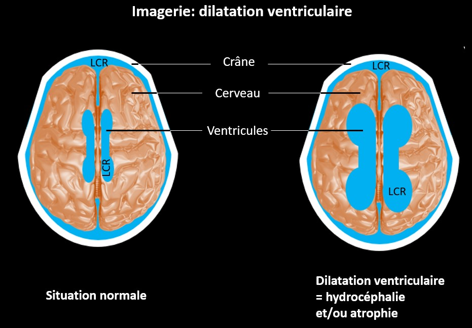 Imagerie : dilatation ventriculaire