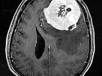 Méningiome (tumeur des méninges) - HCL