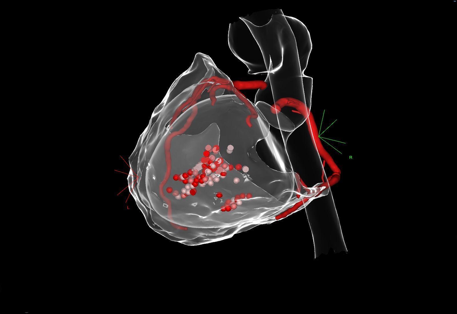 Ablation de flutter cicatriciel sur cardiopathie congénitale complexe de type Fontan